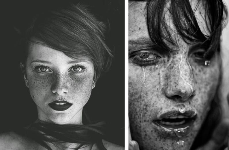 Il pigmentary nota su un corpo di bambini di una fotografia